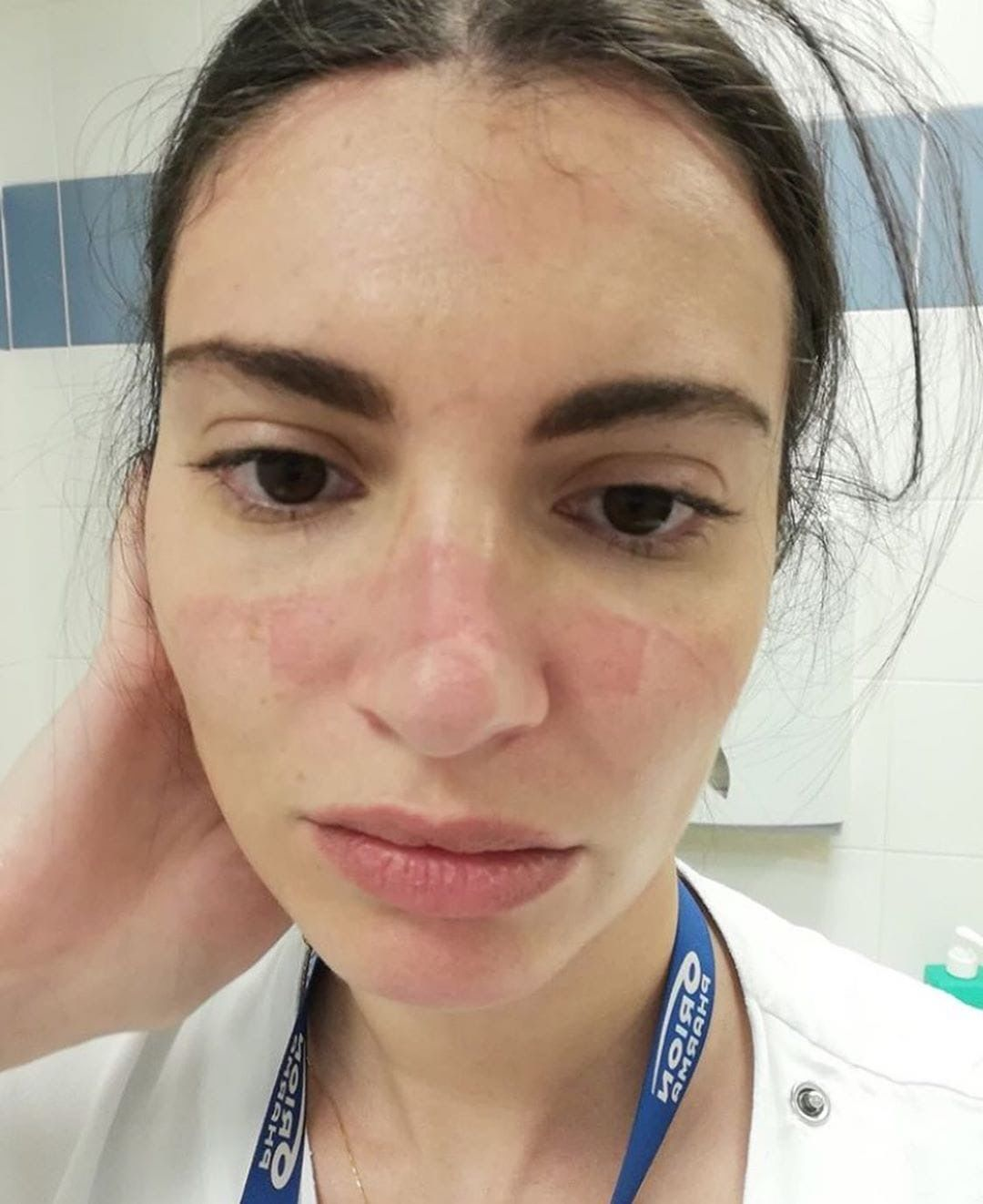 A young female nurse with a red wound on her nose caused by a face mask