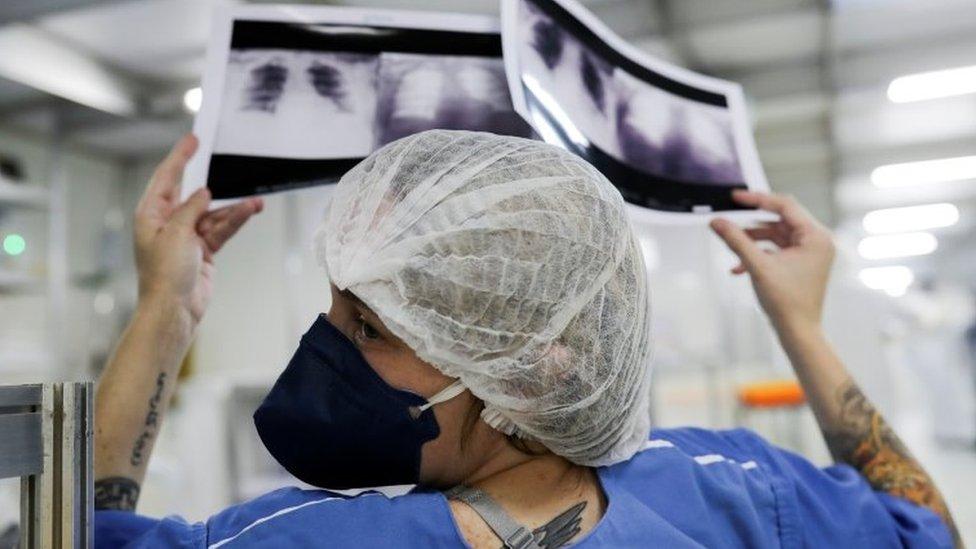 'Escolhemos quem terá mais chances': a difícil decisão de quem terá acesso a UTI com saúde em colapso