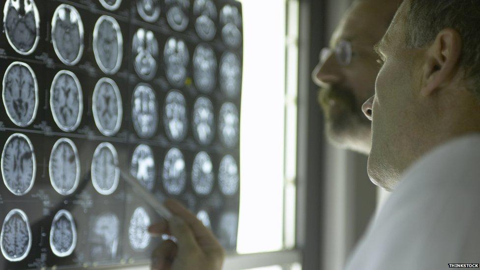 Radiografias de cérebro