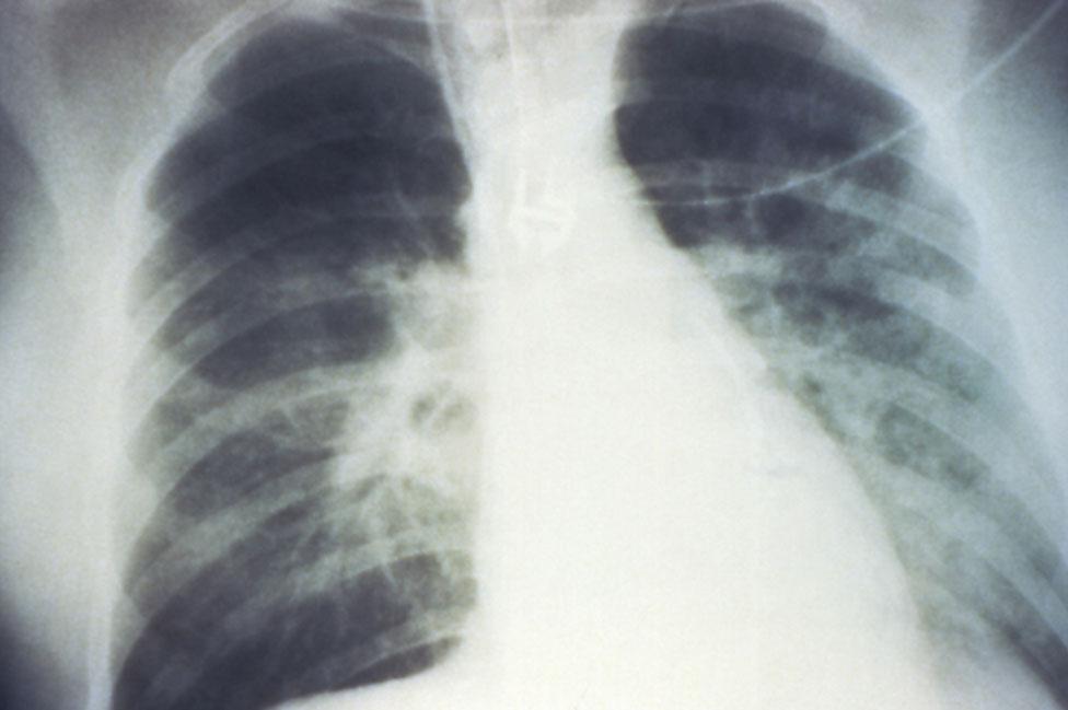 Pulmones afectados por el hantavirus.