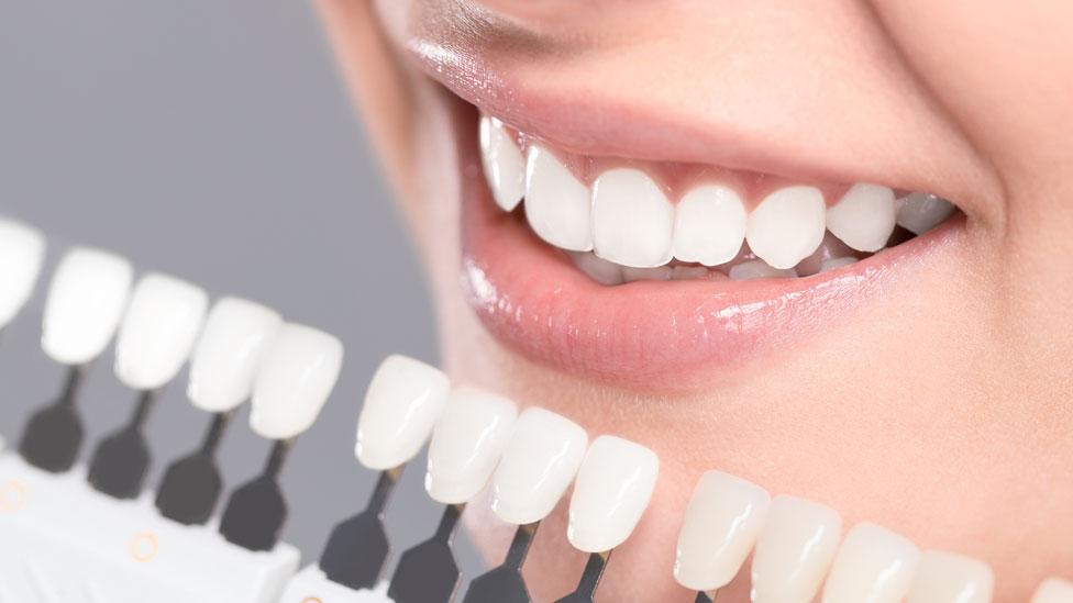 Muestras de colores de dientes