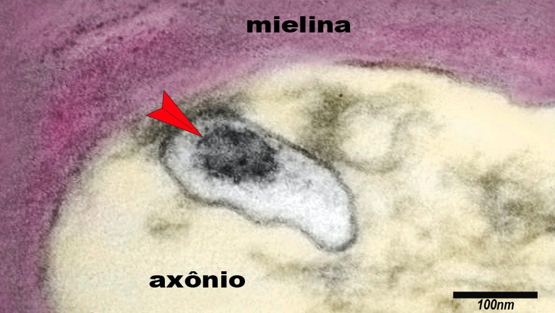 A imagem mostra um axônio de um neurônio do cérebro de uma criança com síndrome inflamatória multissistêmica pediátrica (SIM-P). A seta aponta o vírus SARS-CoV-2 em uma vesícula no citoplasma do axônio.