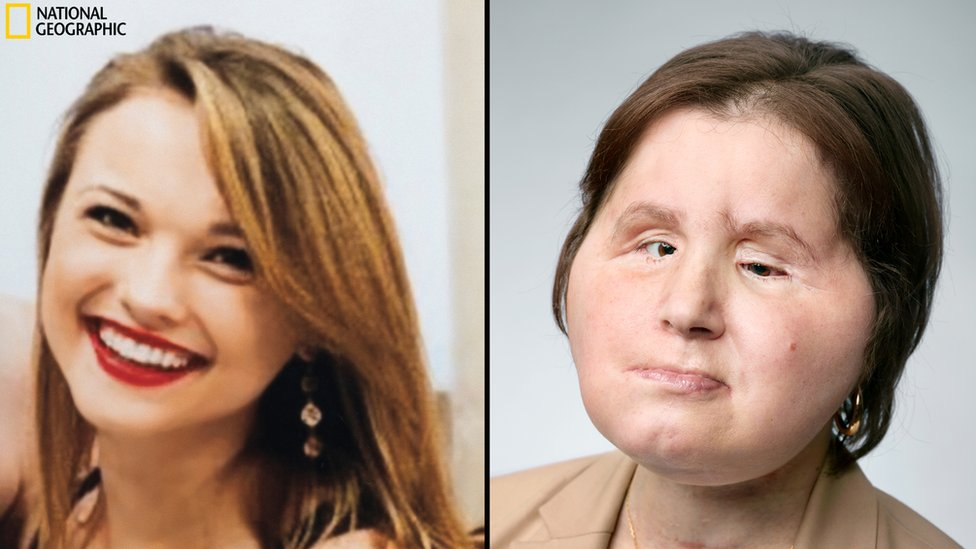 Face transplant: A 'second chance' for young suicide survivor