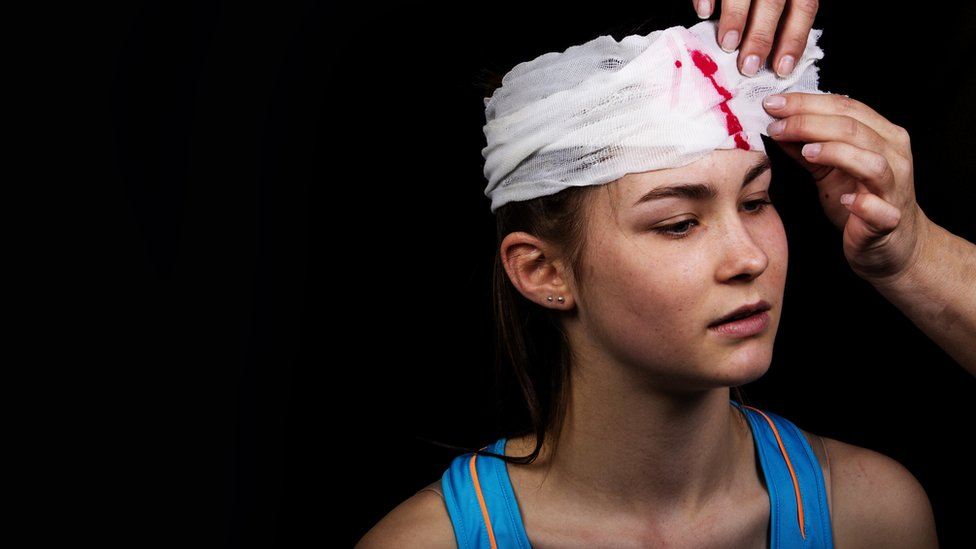 Joven con herida en la cabeza