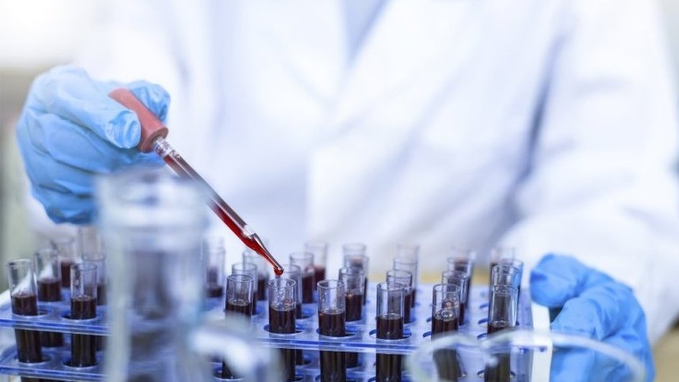 Blood testing in a laboratory