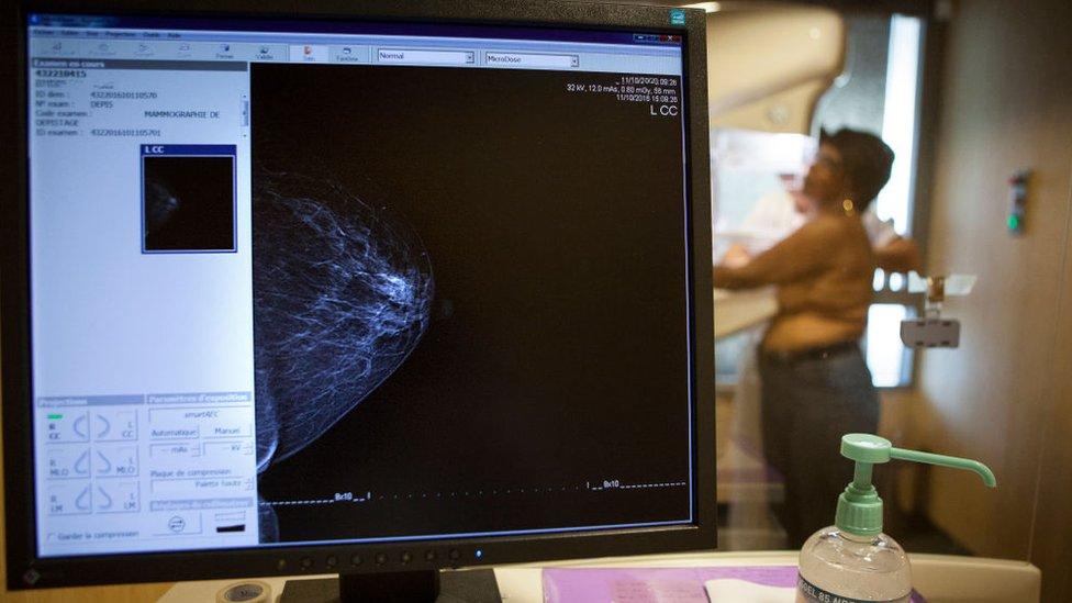 Una mujer durante una mamografía.