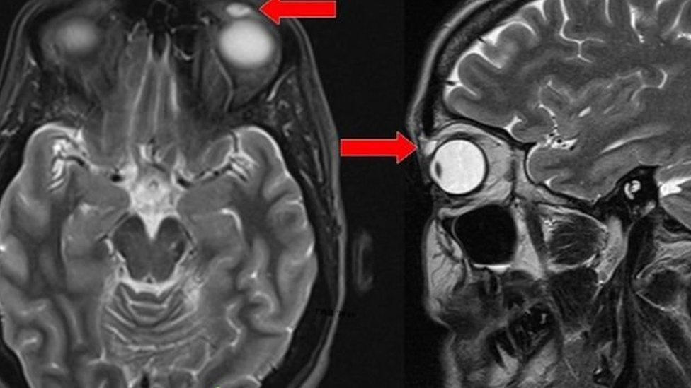 صورة آشعة أظهرت الكيس فوق عين المرأة