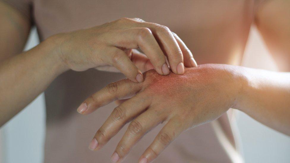 Mujer rascándose la piel