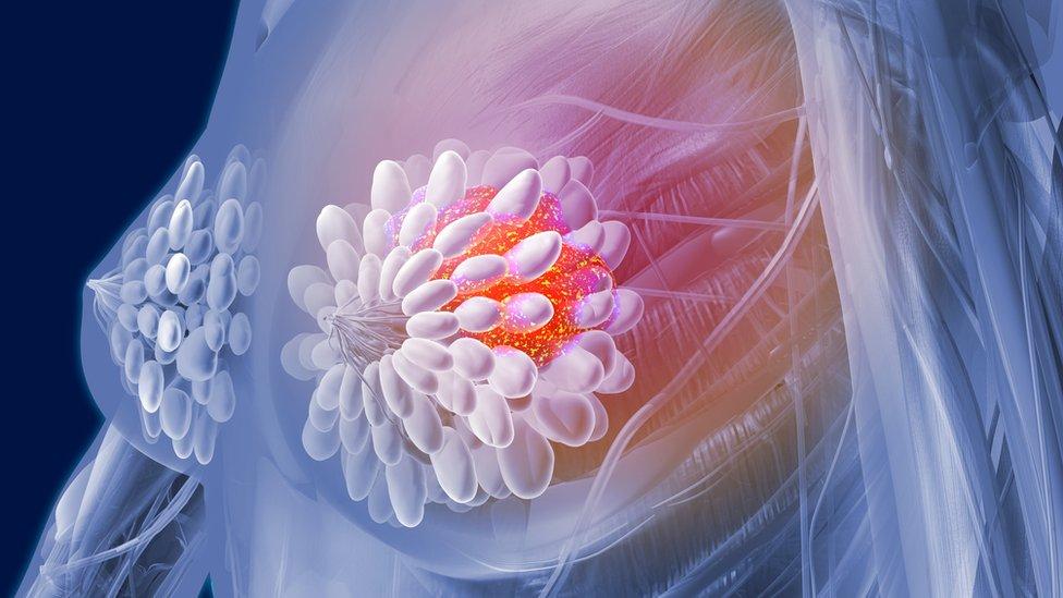 Ilustración, cáncer de pecho
