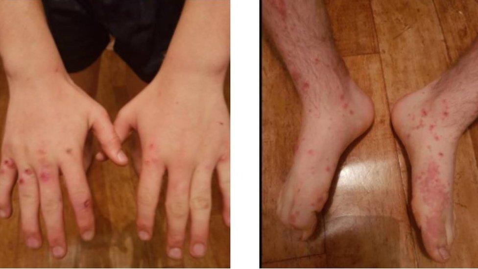 Teenager's cowpox diagnosis surprises doctors