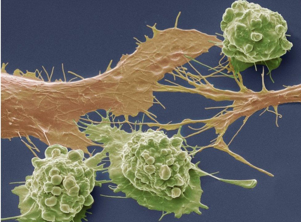 腸癌癌細胞