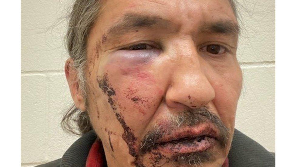 Athabasca Chipewyan First Nation Chief Allan Adam after a violent arrest