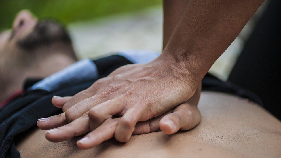 Un hombre recibe resucitación cardiopulmonar RCP