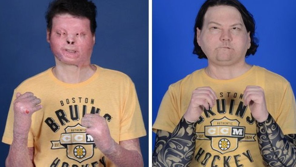 A before and after shot of Joe DiMeo