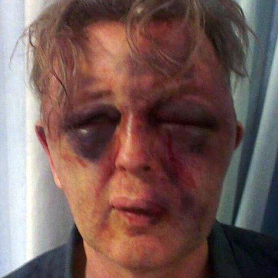 Paul Kohler's injuries