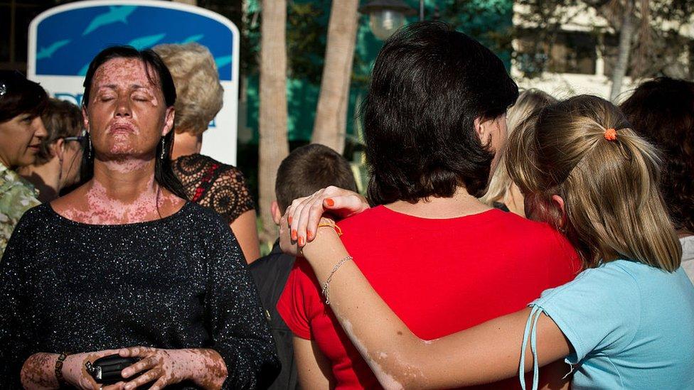 Women with vitiligo in Cuba