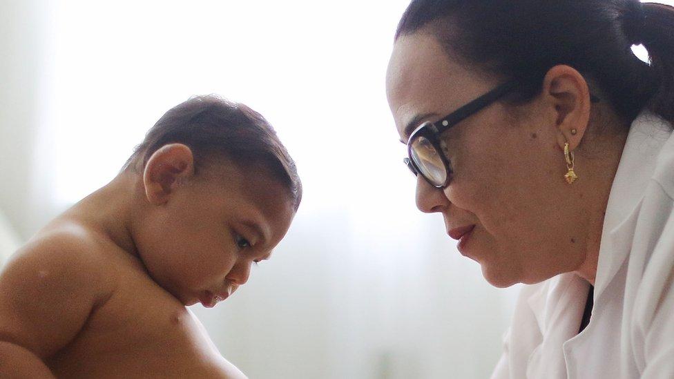 Bebé en Brasil que padece microcefalia con una médica