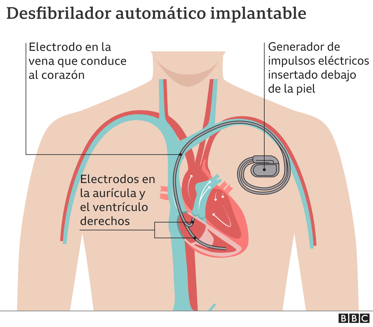 Gráfico del desfibrilador automático implantable, también llamado desfibrilador cardioversor implantable.