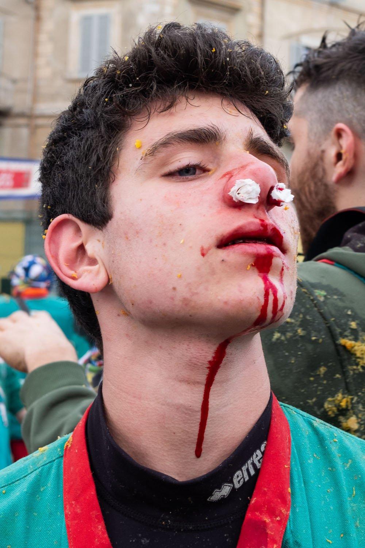 čovek s krvavim nosom