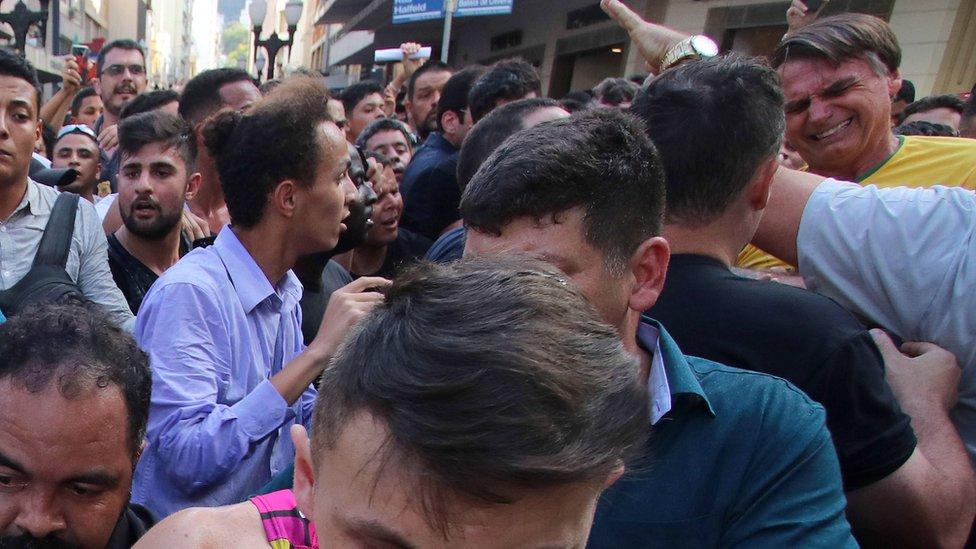 Bolsonaro nakon napada