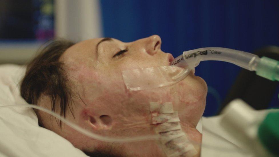 Adele durante la cirugía