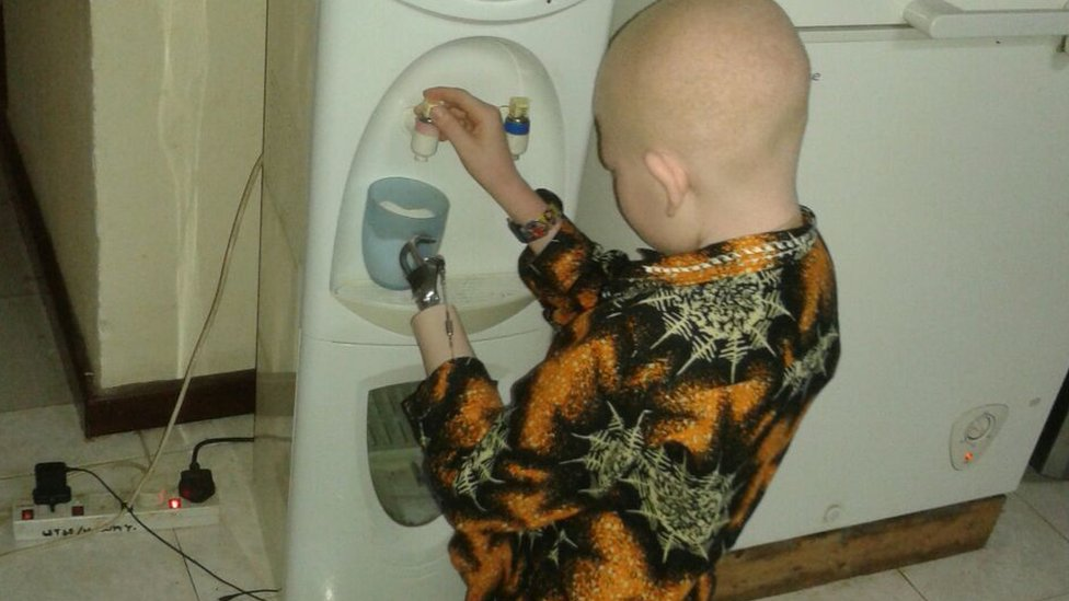 Albino child with prosthetic limb gets water
