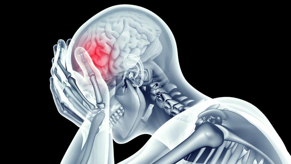 Imagen en rayos X del esqueleto mostrando dolor en el cráneo.