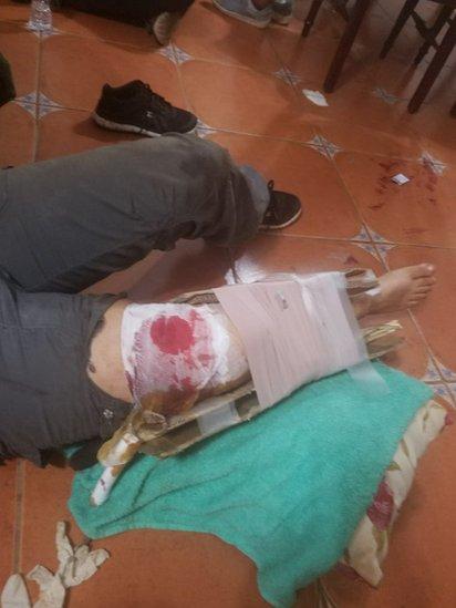 Hombre herido dentro de la iglesia.