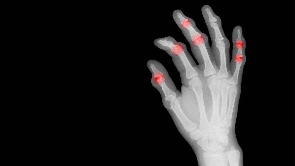 Mano con artritis
