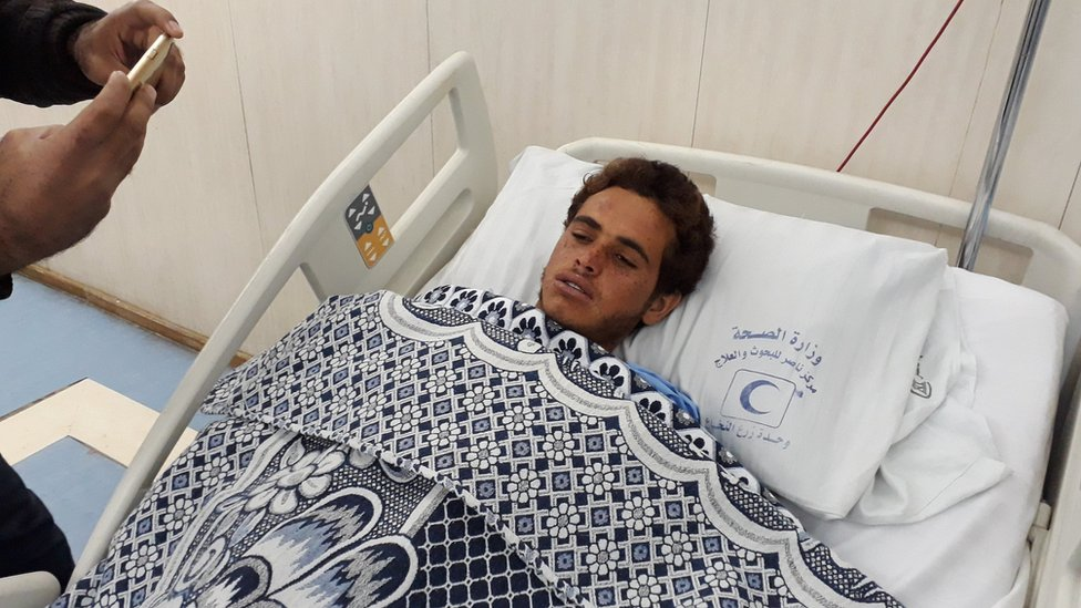 A picture taken with a mobile phone shows an injured man, identified as Reda, who survived Sinai mosque attack, receiving treatment at a hospital in Cairo,