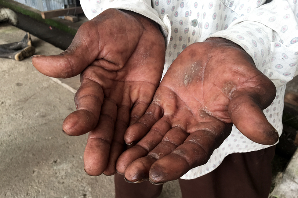Manos con mutilaciones por accidentes de trabajo con el abacá