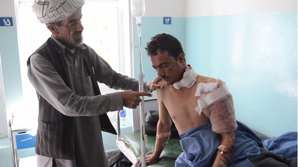 Un herido en un hospital afgano.