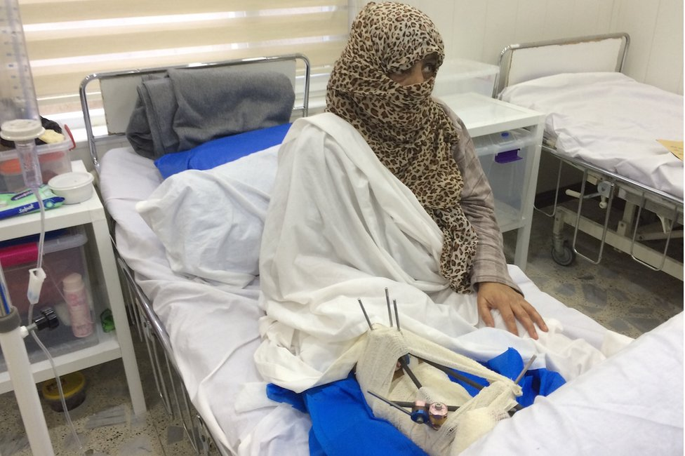 Umm Mohammed sits upright in a hospital bed. Her face is mostly covered by a leopard print headscarf.