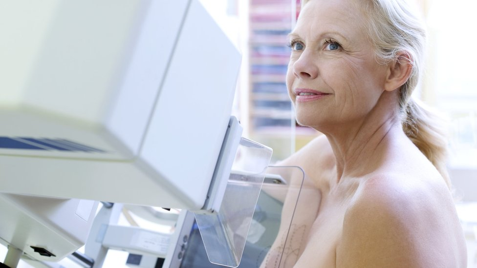 Breast cancer screening error 'overstated'