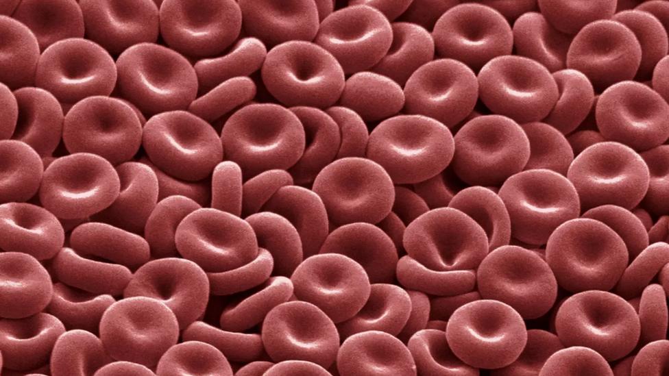 รูปเซลล์เม็ดเลือดแดง