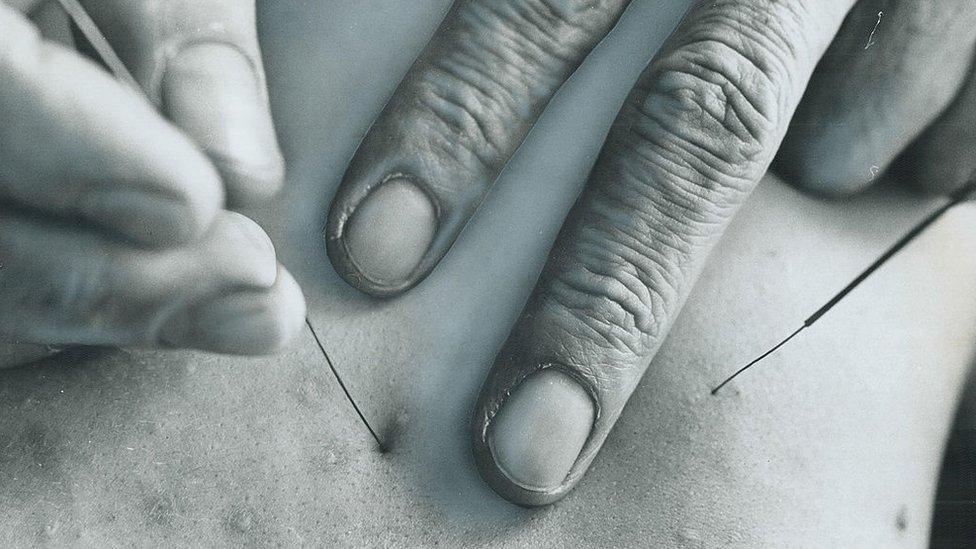 Aguja de acupuntura