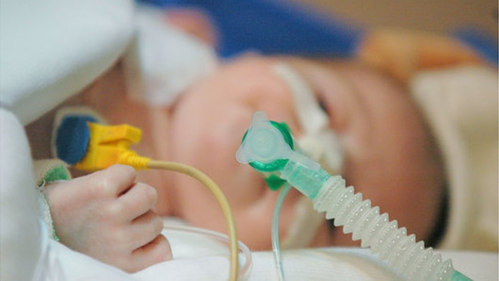 Sick babies at risk from lack of breathing tube monitoring