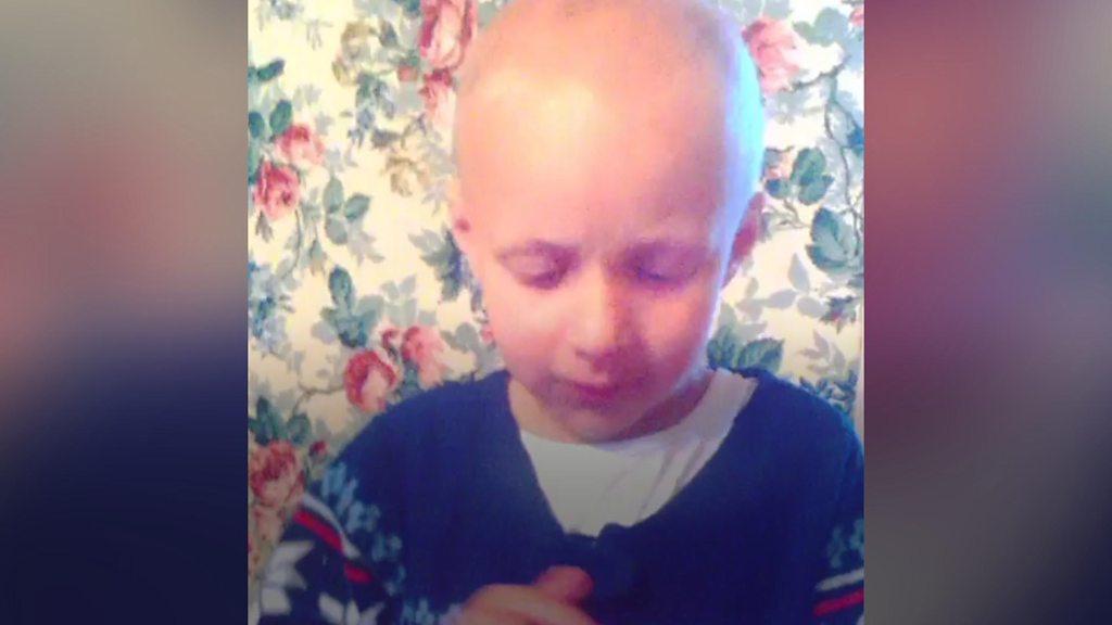 York boy hopes hair will return before school