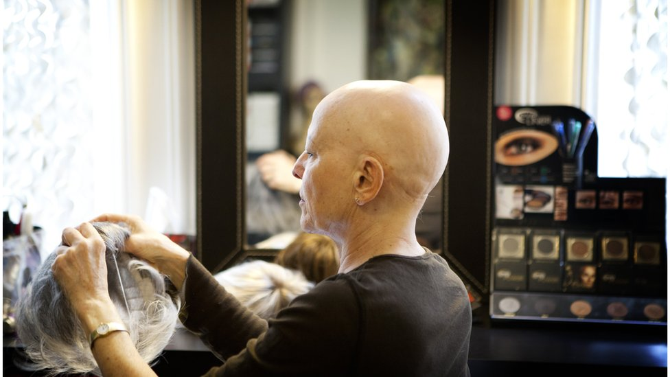 Alopecia patients call for NHS to fund real hair wigs
