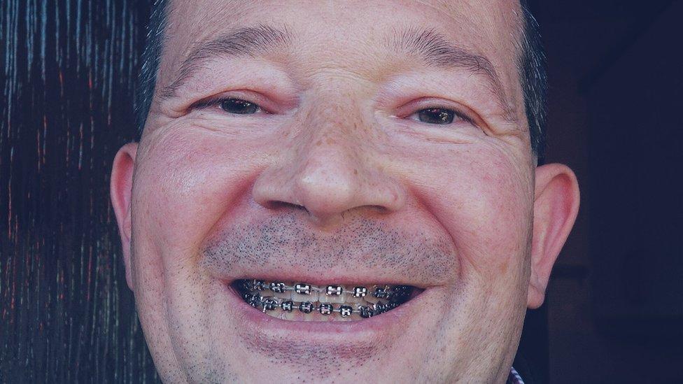 Neil Hillyard with braces