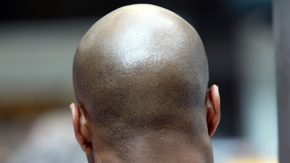 Early baldness higher heart disease risk factor than obesity, says study