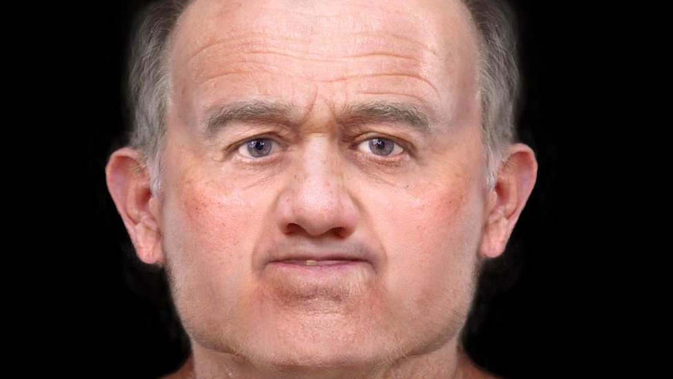 Reconstructed face