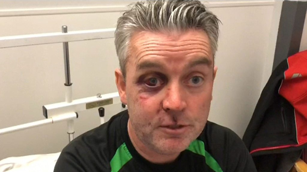 Assaulted referee says he forgives his attackers