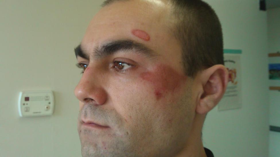 Carseview Centre mental health unit restraint 'shocking'