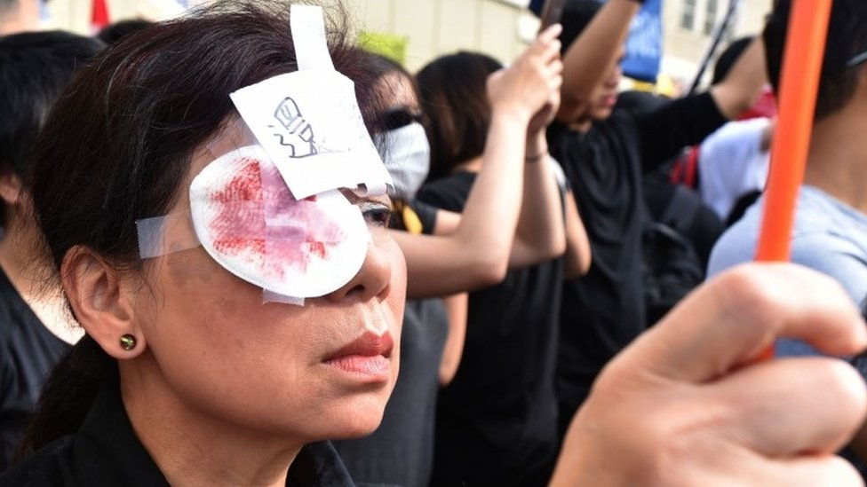 A pro-Hong Kong democracy supporter wears a patch on one eye and a drawing that depicts salt on a wound during a rally in Vancouver