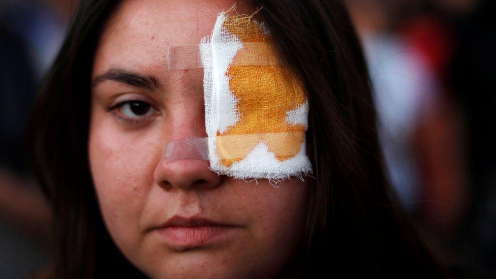 Manifestante con parche en el ojo en apoyo a Gustavo Gatica