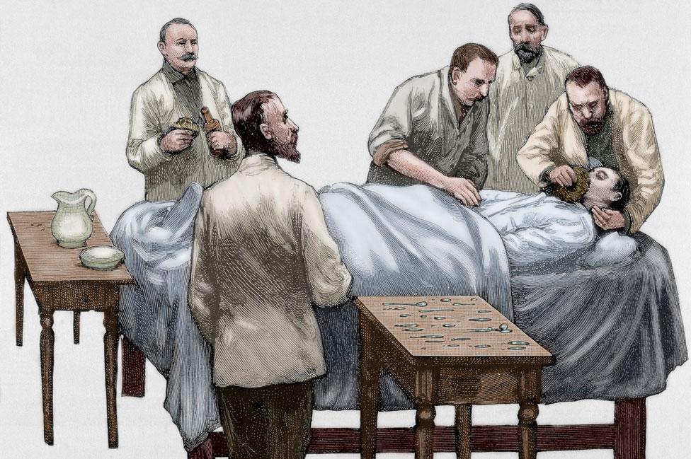 Dibujo de un paciente recibiendo cloroformo.