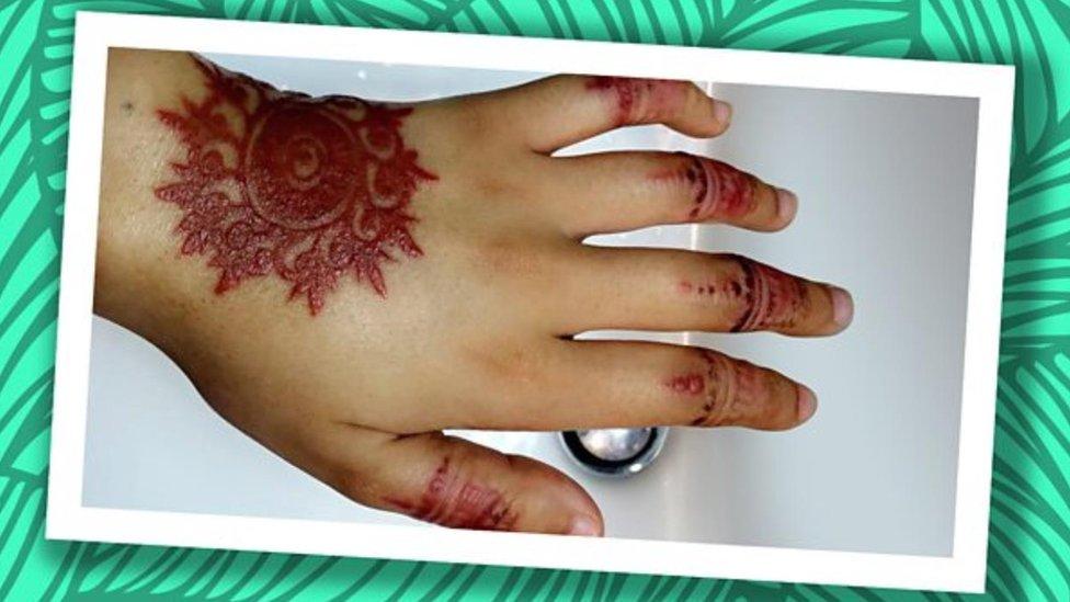 Mano cicatrizada con marcas de henna