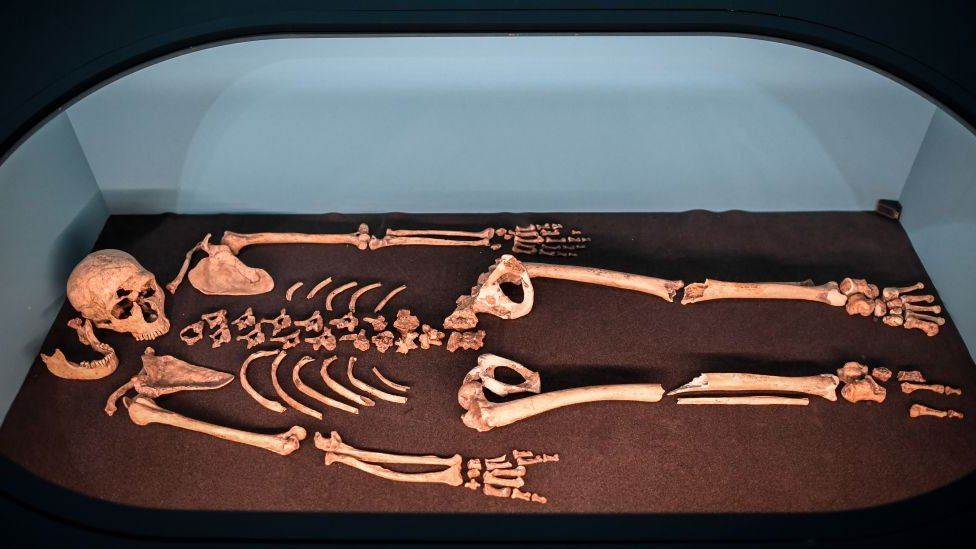 Neardental skeleton