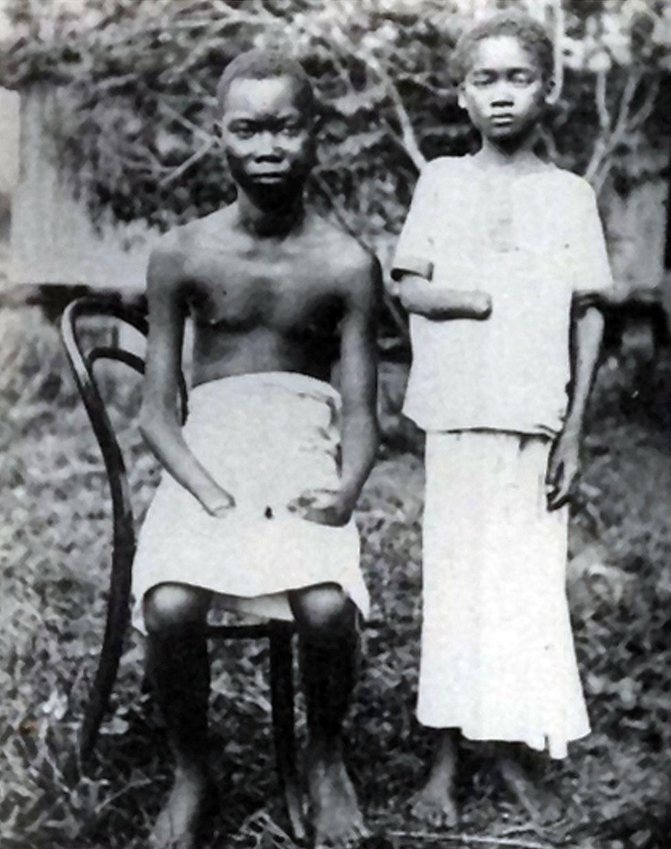 Dos jóvenes mutilados